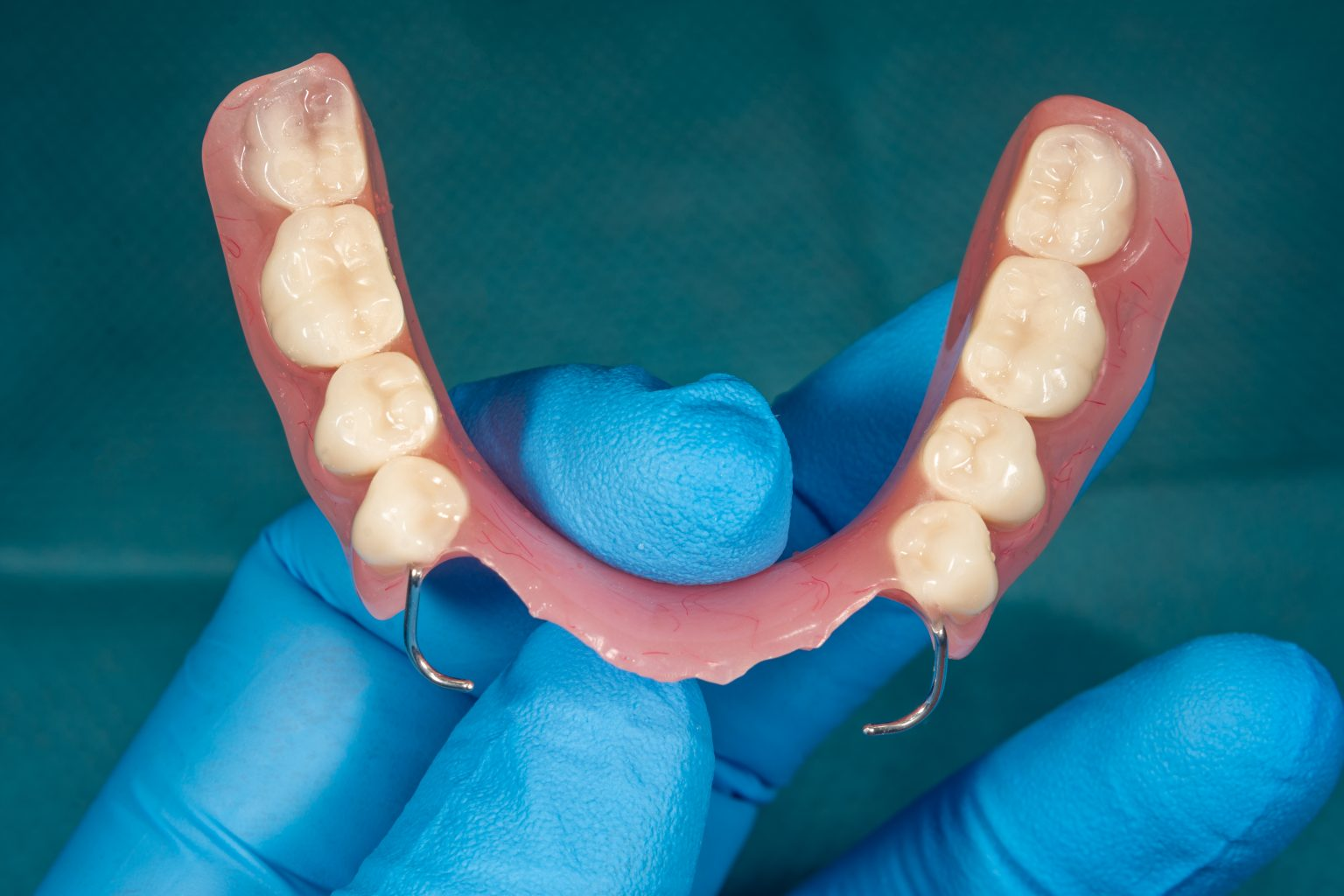 Close Up Human Denture Of The Upper Jaw On A Blue Background In The Hand Of Dentist Wearing A Medical A Glove